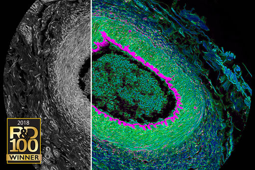 Histological section from cat eye. Simultaneous spectral (grey) and FLIM (color) confocal imaging reveals contrast by lifetime. Acquisition and visualization using SP8 FALCON and LAS X software.